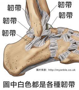 【登山醫學】腳踝扭傷後韌帶鬆掉會怎樣嗎?